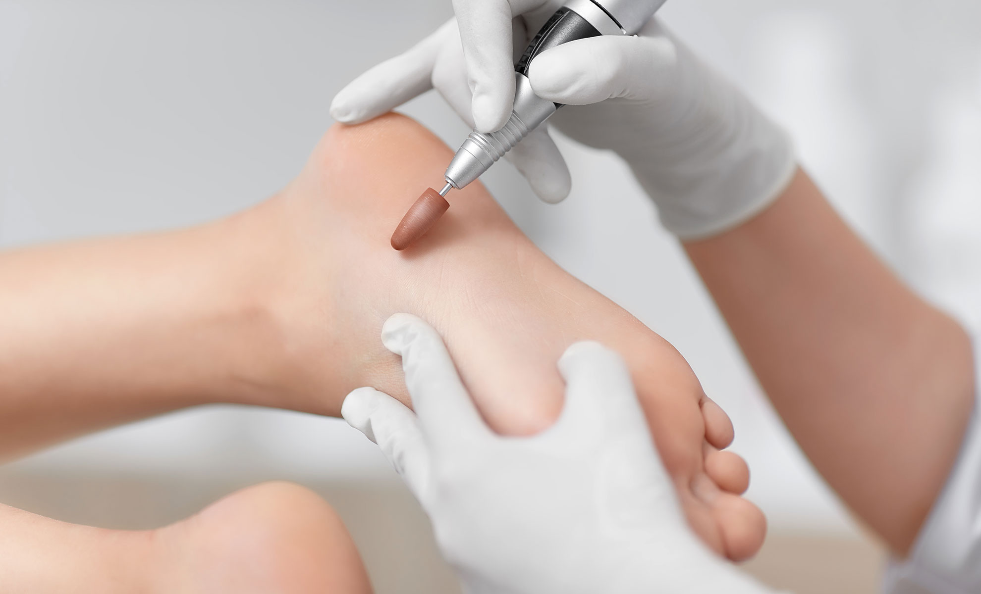 Close up of podiatrist using special grinding equipment and making procedure polish for feet. Podiatry specialist in white gloves cleaning skin of client from callus and corn with professional tool.